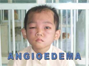 angioderma
